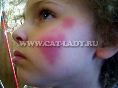 как лечить холодовую аллергию на лице