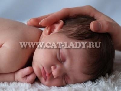 мраморная кожа у новорожденных